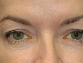 Surgery for Ptosis droopy eyelids