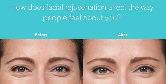 facial rejuvenation in orlando