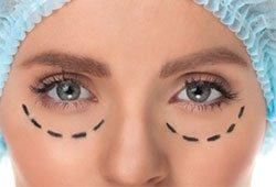 Orlando eyelid blepharoplasty
