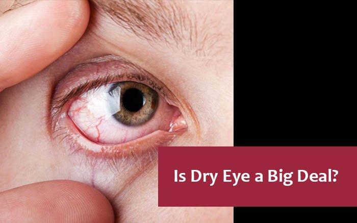 Treat dry eyes at Boutique eye orlando