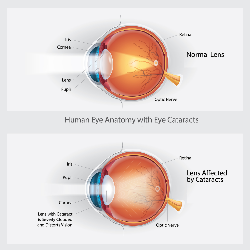Cataracts page