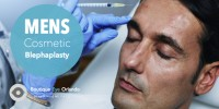 5 Reasons Why Men Get Blepharoplasty