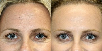 Holiday Botox & Filler Special