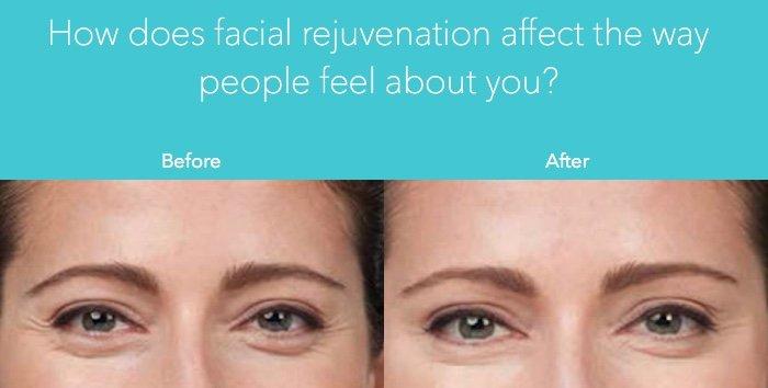 facial rejuvenation in orlando