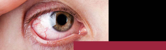 Is Dry Eye a Big Deal?