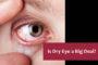 Orlando Eye Doctor Treats Dry Eyes