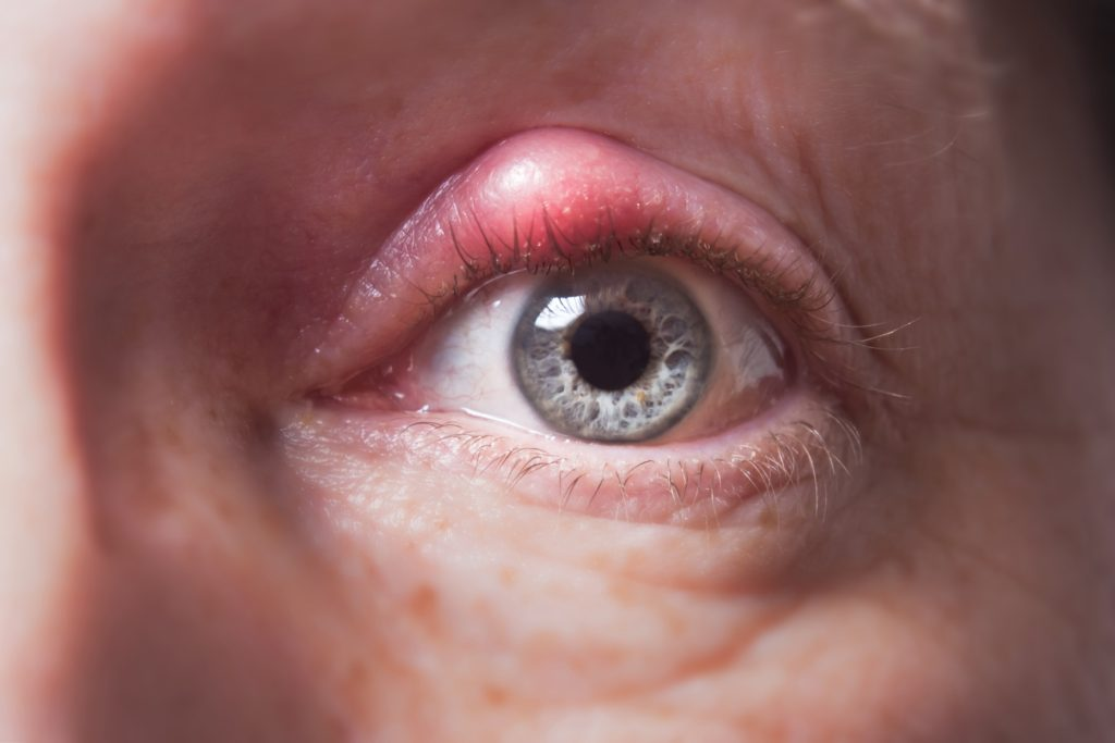 What is a Chalazion/Stye?
