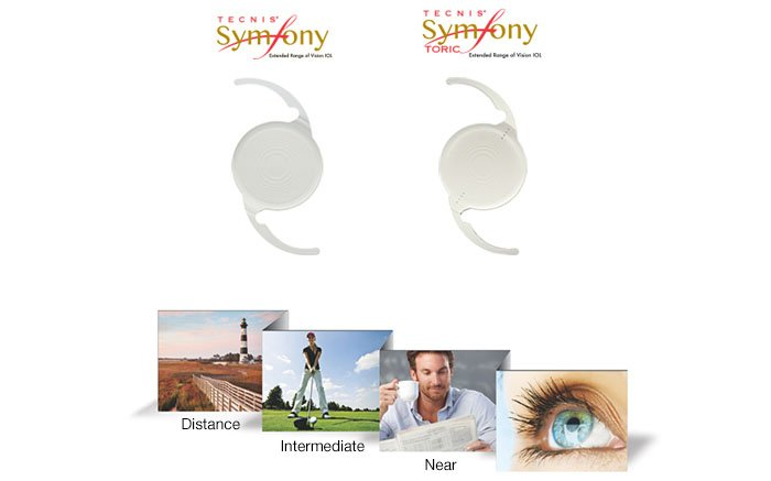 A New Premium Lens For Cataract Surgery